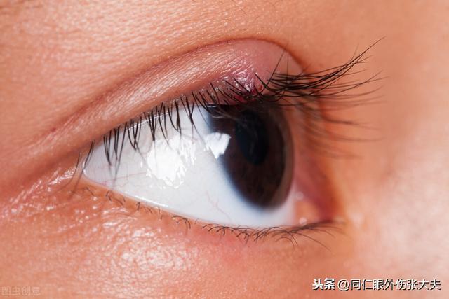 眼角痒是怎么回事,为什么眼角发红、发痒?一般有四种情况