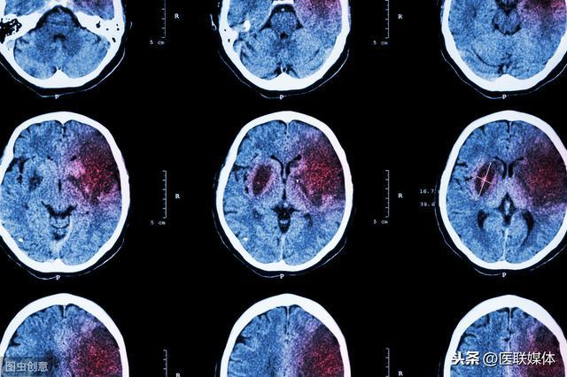 脑出血后遗症有哪些,脑溢血发生后,可能会出现这3个后遗症,得积极防范