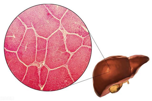 肝炎的症状有哪些,警报!肝病来临有信号,这5大特征要抓住,看看你有没有