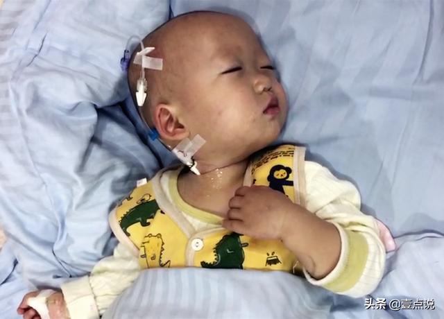 婴儿的屁股,婴儿屁股长疙瘩危及生命,爸爸哭诉:基因突变太可怕了
