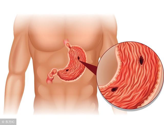 胃出血症状有哪些,胃出血是个常见的症状,那么什么疾病会导致胃出血,胃癌也会吗?
