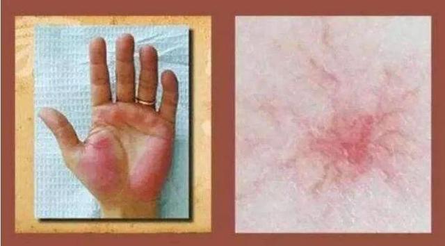 """蜘蛛痣图片,出现""""蜘蛛痣""""会误认为皮肤过敏,近期却被诊断为肝硬化"""