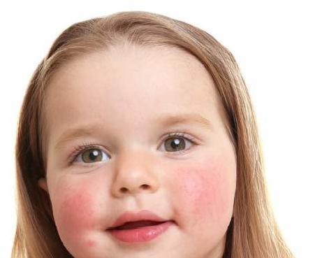 婴儿皮肤,婴幼儿的皮肤怎么护理?