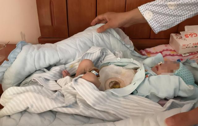 宝宝刚刚出生时医院门诊应当对小孩开展查验