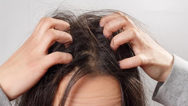 痒疹图片,医生警告头皮痒不要抓!4种头皮皮肤病会传染吗?