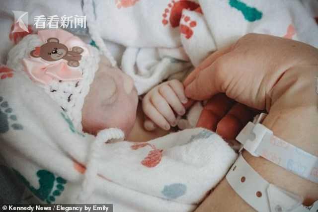 畸形婴儿,仅活了70分钟!母亲执意产下无脑畸形婴儿 为啥不听医生劝?