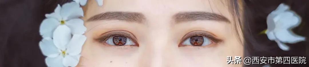割双眼皮图片,#安心变美课堂##我的安心变美推荐# 做双眼皮、眼角、提肌、去脂、去皮知多少?