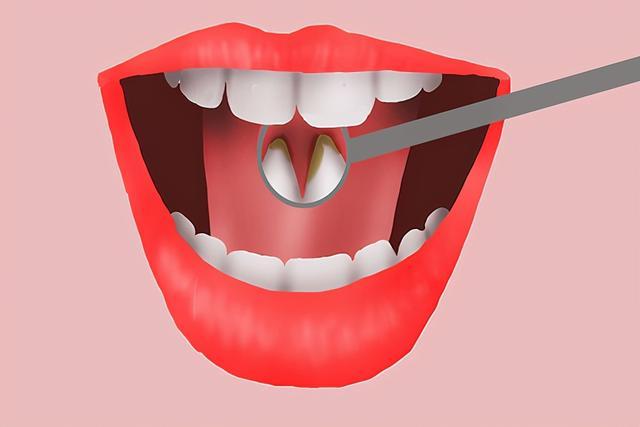 """牙结石怎么自己去除,牙齿上抠出来的""""小石头"""",又黄又臭,到底是什么?如何去掉?"""