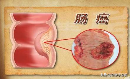 肠癌拉出来大便的图片,晨起哪种大便预示有肠癌?一文教你如何在大便中发现肠癌的端倪
