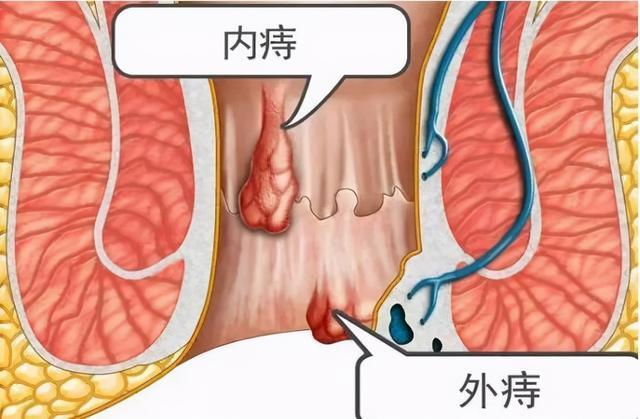 痔疮外痔肉球怎么消除,不疼的痔叫内痔,当它脱出肛门外时,就只剩这种办法能帮到你了