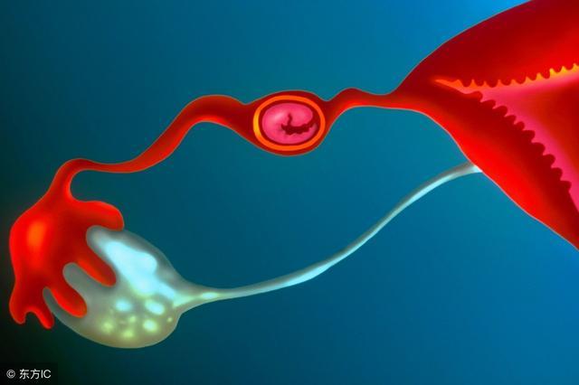 输卵管是受孕的重要器官,切除其中一侧后,对身体有什么