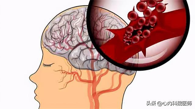 擅自把氨氯地平换成硝苯地平,吃出脑出血!医生:这样吃药很危险