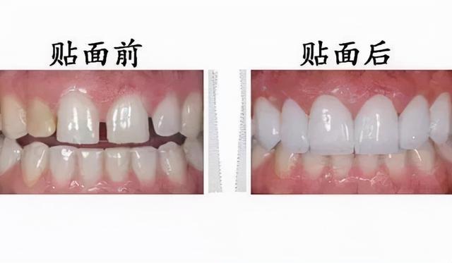 牙齿为什么越来越黄?常见的三种美白方式相识一下1134 作者:admin 帖子ID:23448