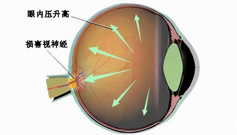 人的眼球很脆弱 如果眼球受伤充血了怎么办
